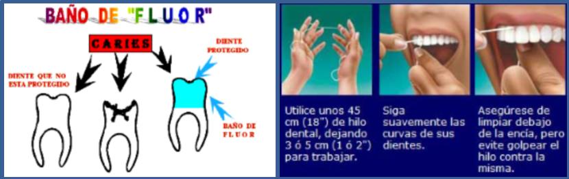 fluor e hilo dental