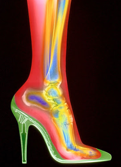 foto de anatomia del pie
