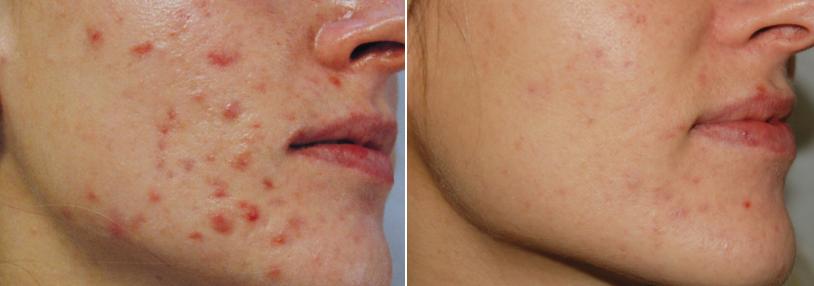 acné def