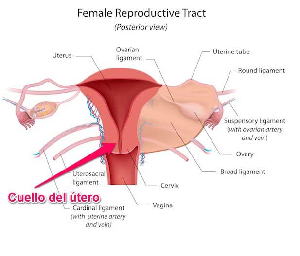 imagen del borramiento del cuello uterino